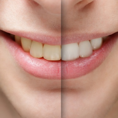 beleni_zubu_v_ordinaci_-_photodune-8854883-young-man-smile-before-and-after-teeth-whitening-s